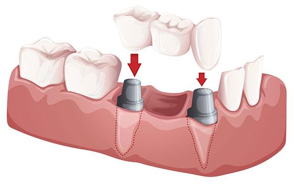 Dental Bridges Anchorage